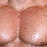 Causas y tratamientos para las estrias en los hombres